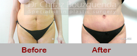 abdominoplasty before after photos