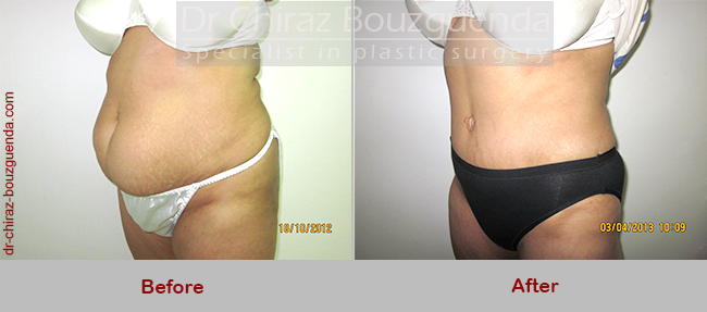 tummy tuck before after results