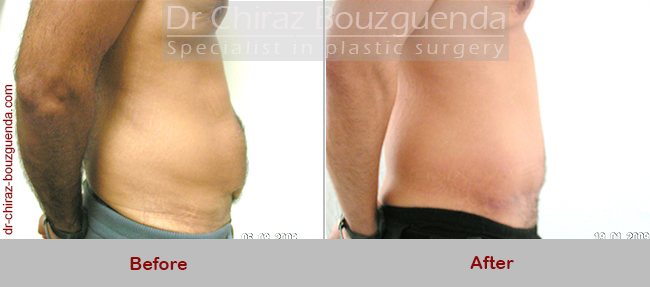 tummy tuck before after photos tunisia