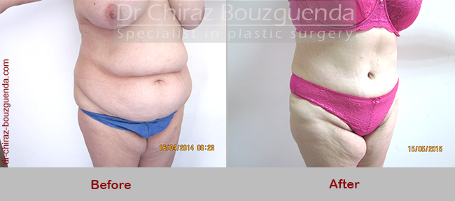 tummy tuck before after photos london