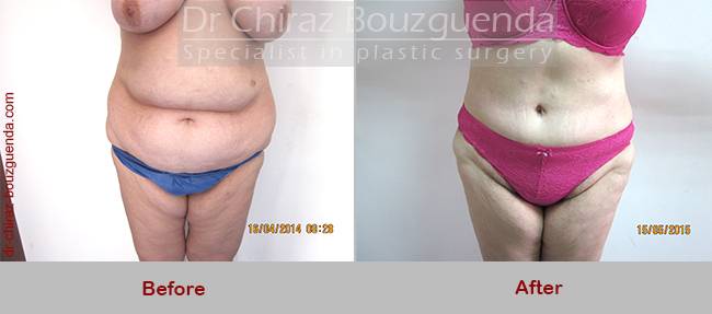 tummy tuck before after photos uk