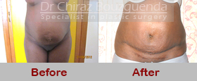 tummy tuck before after photos abroad