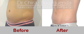 male liposuction before after