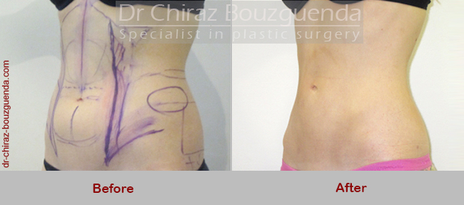 liposuction before after photos