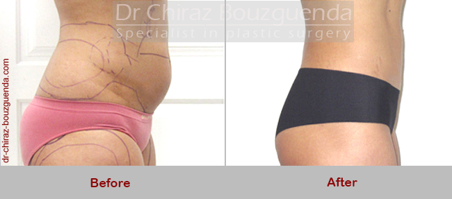 liposuction before after pictures