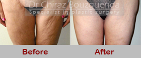 thigh lift before after pictures