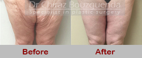 thigh lift before after results