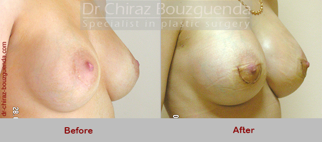 breast implant removal before after