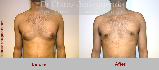 male breast reduction before after photos