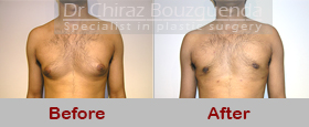 male breast reduction before after