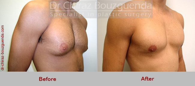 gynecomastia surgery before after pictures