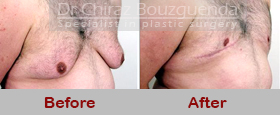 gynecomastia surgery before after pics