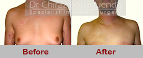 gynecomastia surgery abroad before after