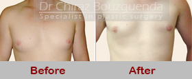 gynecomastia surgery abroad before after pics