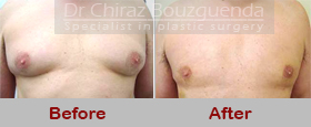 male breast reduction abroad before after results