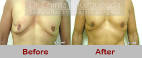 male breast reduction surgery before after photos