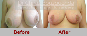 breast reduction before after photos