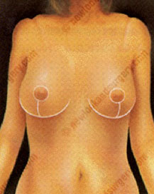 cost breast reduction surgery abroad