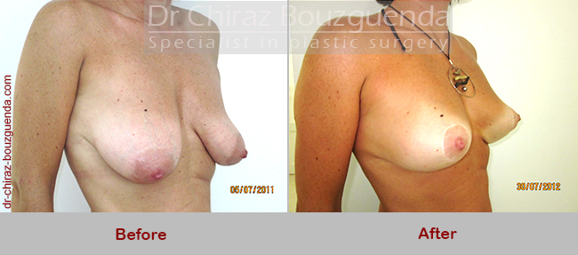 breast lift before after photos