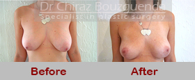 breast lift before after pictures