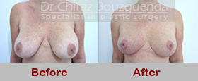 breast uplift before after
