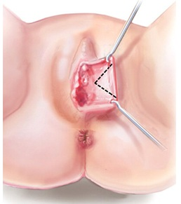 labiaplasty-procedure-abroad-tunisia